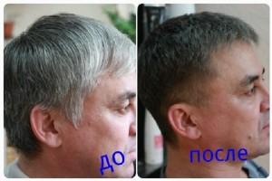 Восстановление естественного пигмента у мужчин с сединой